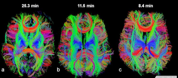 Connectome projesi, dijital ölümsüzlük için bir ön koşul olan, insan beyninin çözümlenmesi adına önemli bir çalışma.